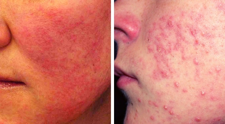 Face Rash Allergy