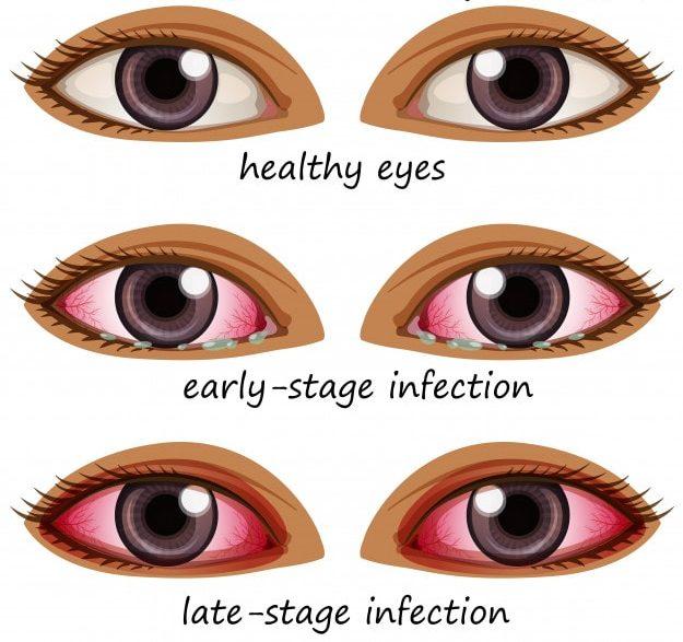 viral conjuctivitis